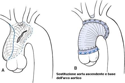 phoca_thumb_l_7-diss-tipo-a-sostituzione-aorta-acendente-e-base-arco