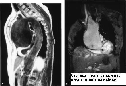 phoca_thumb_l_9-rmn-aneurisma-aorta-ascendente