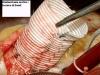 phoca_thumb_l_20-anuloectasia-aortica-tecnica-di-david